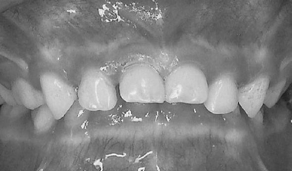 上顎突出 症例写真