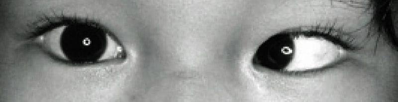 斜視 症例写真